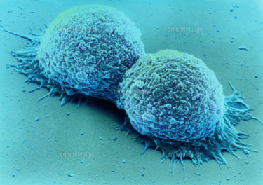 癌はこうして作られる-癌成長のメカニズム