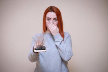 脱毛症の傾向と対策